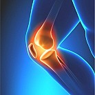 Joint Replacement Center of Excellence